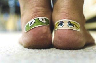 Как лечить волдыри на ногах