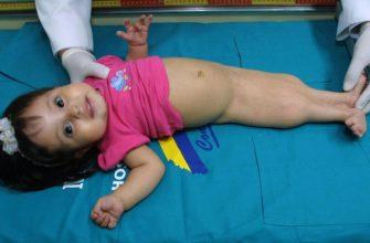 Девочка с синдромом русалки