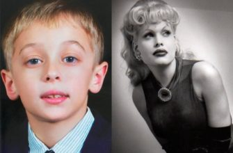Аманда Лепор до и после операции